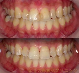 前歯CR〜