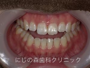 PICT0171.jpg